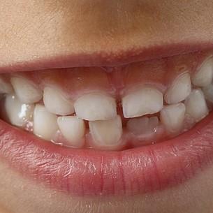 Zeit statt Zahnspange